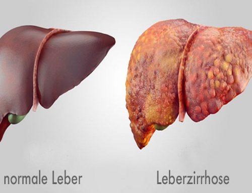 Kaum Symptome bei Lebererkrankungen